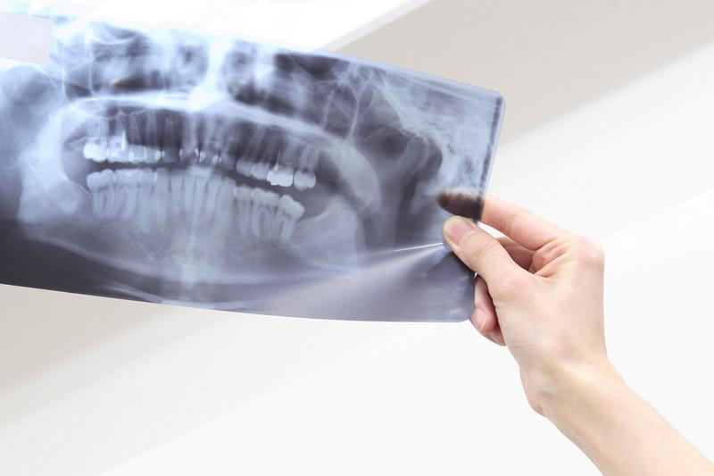 インプラントと歯科用CT