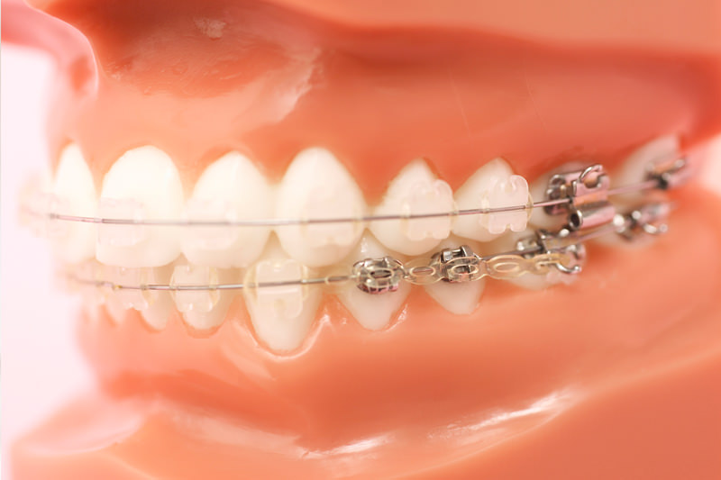 歯科矯正治療と歯科用CT